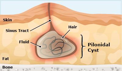 Pilonidal-Cyst
